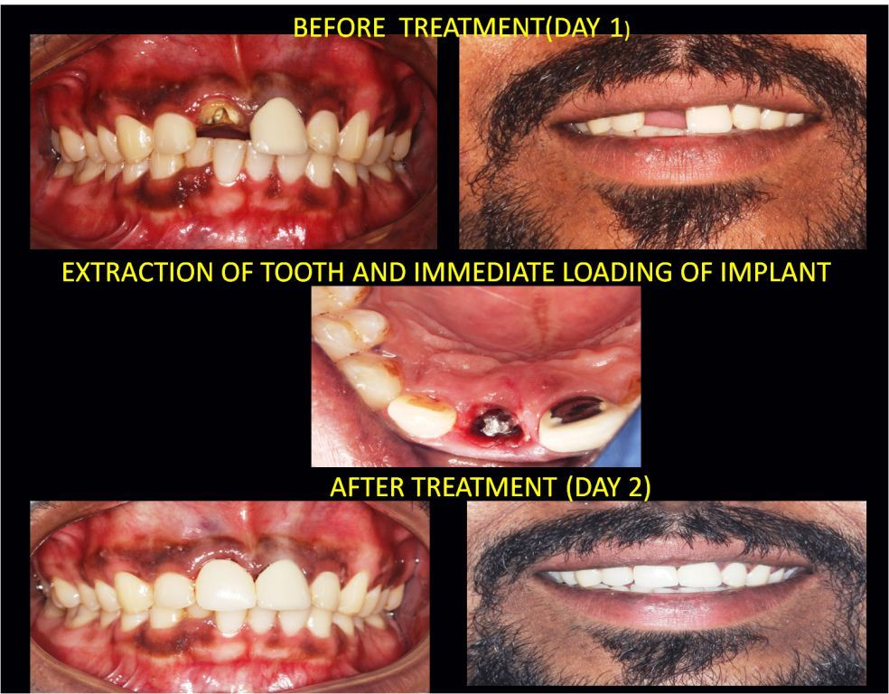 Immediate Dental Implant