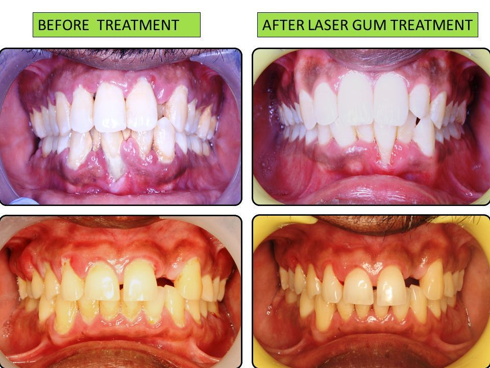 Laser Gum Treatment (LANAP)