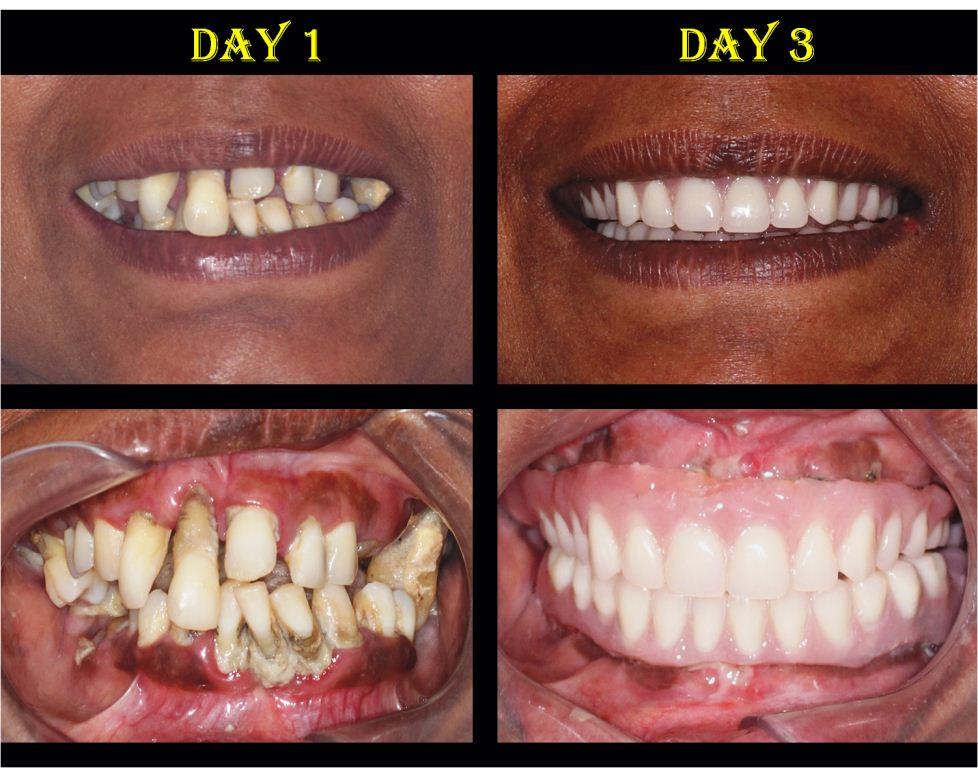 New Teeth in 3 Days - Dental Implants