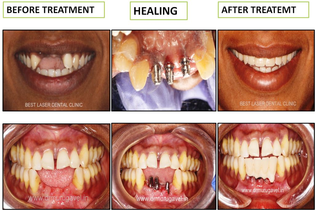 BCS Dental Implants