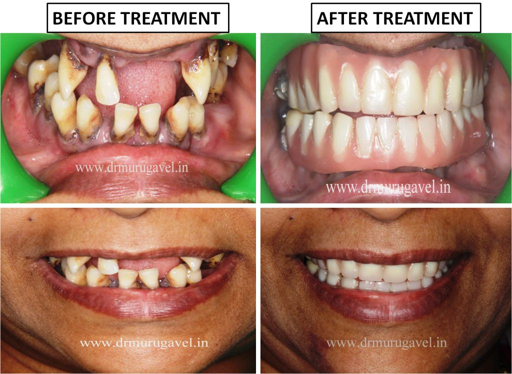 Full Mouth Dental Implants in 3 Days