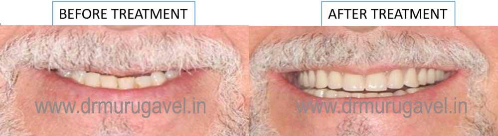 FULL MOUTH REHABILITATION using Dental Implants