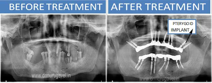 PTERYGOID IMPLANTS