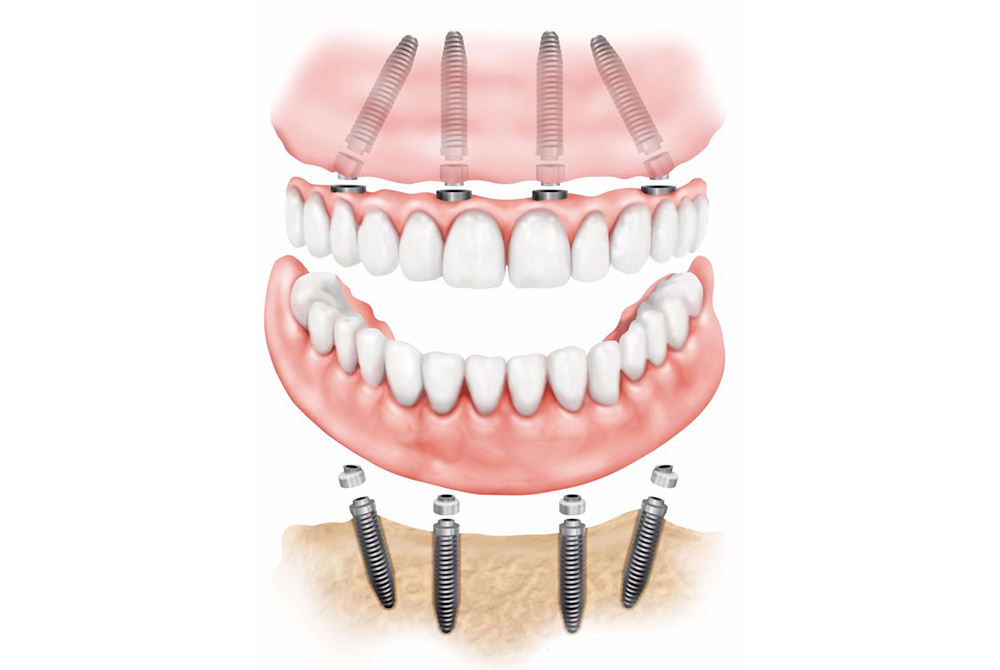 All on four dental Implant image