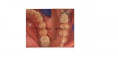Teeth replacement with digital dentistry in India