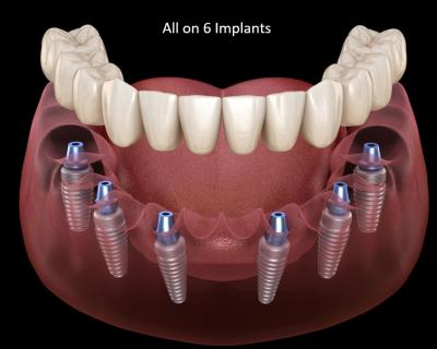 Nobel biocare all on 6 implants