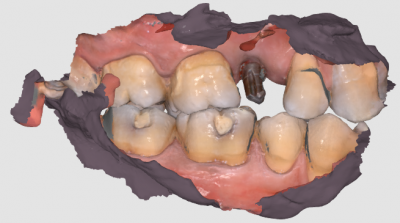 teeth replacement with implants