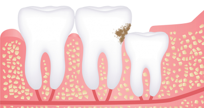 wisdom teeth removal in chennai