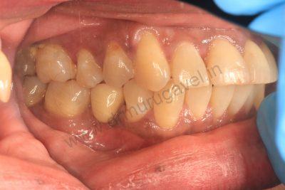 Kos implant , India